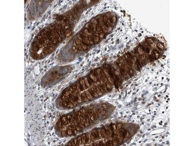 GAK Polyclonal Antibody