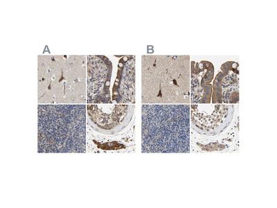 CCDC155 Polyclonal Antibody
