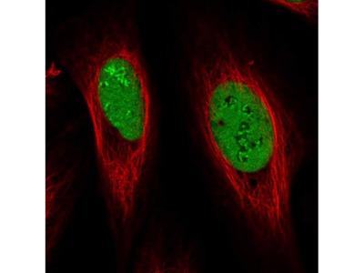 NOLA1 Polyclonal Antibody