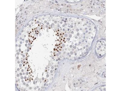 C6orf222 Polyclonal Antibody
