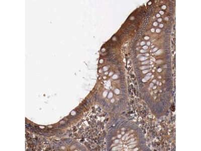 ARMCX4 Polyclonal Antibody