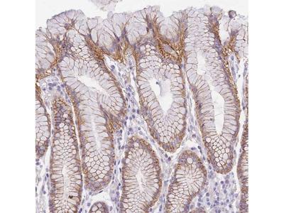SRrp35 Polyclonal Antibody
