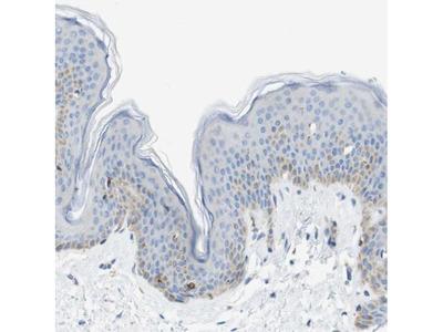 SDR42E1 Polyclonal Antibody
