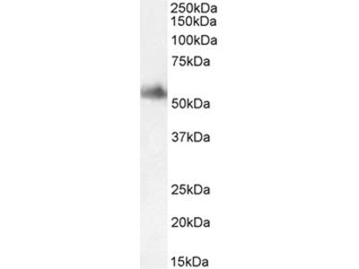 Anti-Human Clusterin, Affinity Purified, (Polyclonal), (Rabbit IgG)