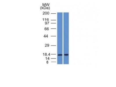 PIP Antibody (PIP / 1571)