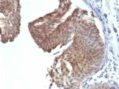 Cytokeratin 6a Antibody (KRT6 / 1702)