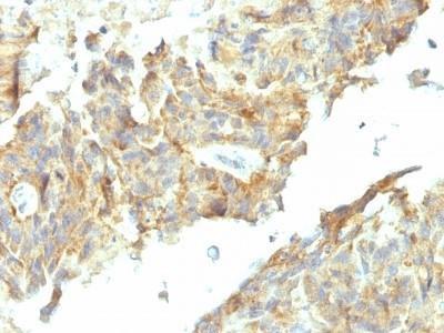 Alkaline Phosphatase, Tissue Non-Specific Antibody (ALPL / 597)