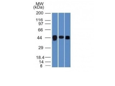 TIA1 Antibody (TIA1 /1313)