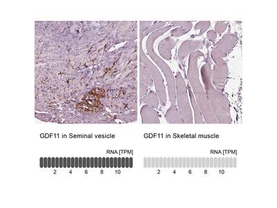 Anti-GDF11 Antibody