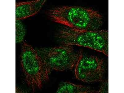Anti-PRKAA1 Antibody