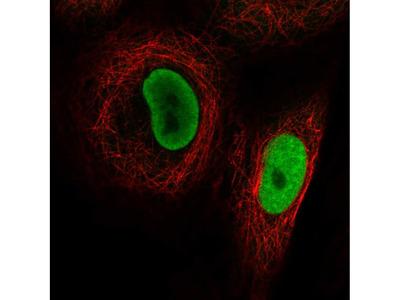 Anti-PRMT1 Antibody