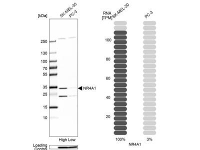 Anti-NR4A1 Antibody
