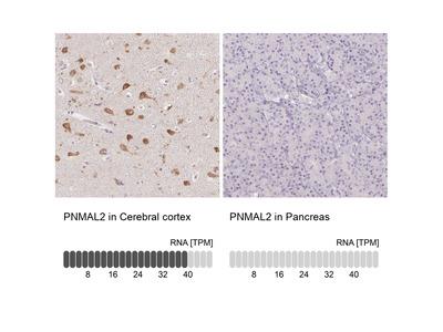 Anti-PNMAL2 Antibody