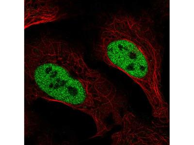 Anti-SLC4A3 Antibody