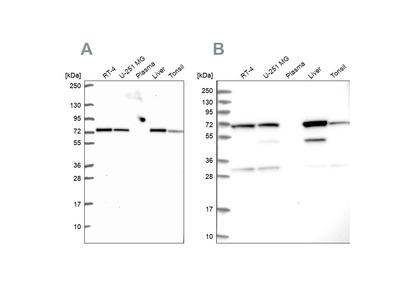 Anti-SDHA Antibody