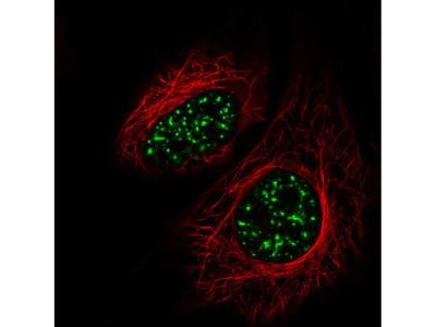Anti-SRRM2 Antibody