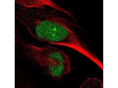 Anti-ARNTL2 Antibody