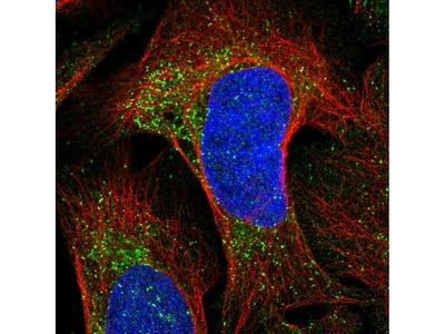 Anti-CKLF Antibody