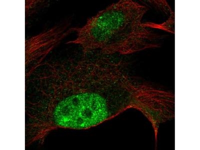 Anti-ZNF606 Antibody