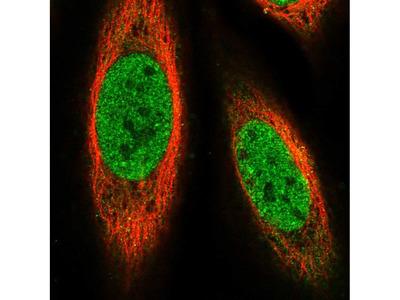 Anti-PRDM14 Antibody
