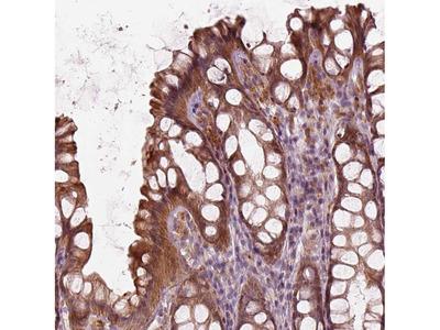 Anti-SLC25A46 Antibody