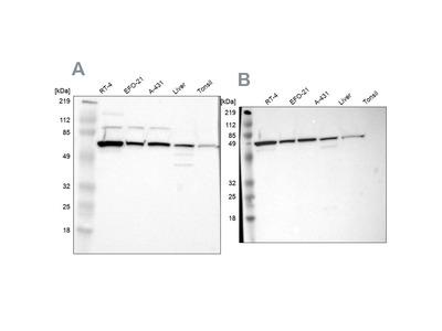 Anti-CKAP4 Antibody