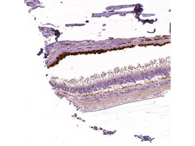 Anti-ARMS2 Antibody