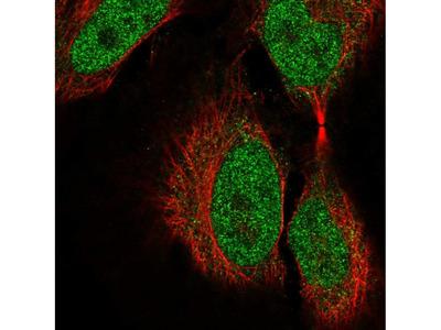 Anti-COL9A3 Antibody