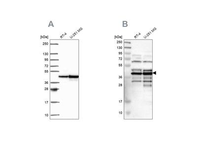 Anti-SLBP Antibody