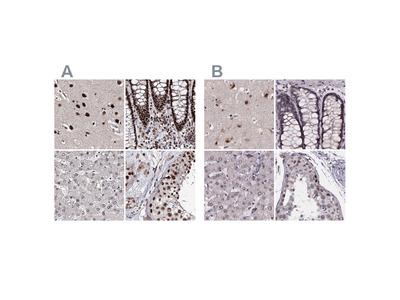 Anti-U2SURP Antibody