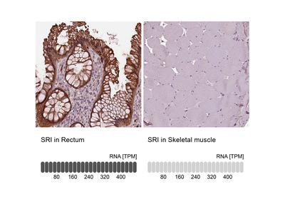 Anti-SRI Antibody