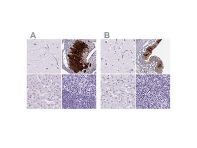 Anti-KRT12 Antibody