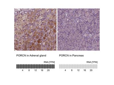 Anti-PORCN Antibody