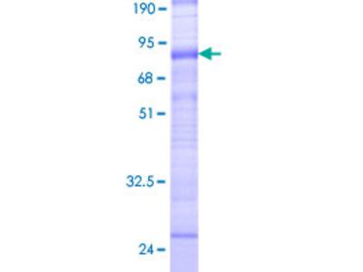 SLC38A3 / SNAT3 Protein