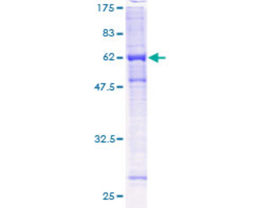 PHF9 / FANCL Protein