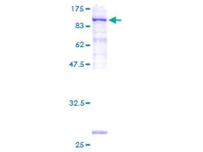 SRPR Protein