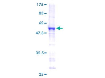 SNRPB2 Protein