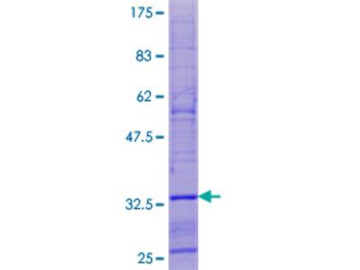 SPHAR Protein