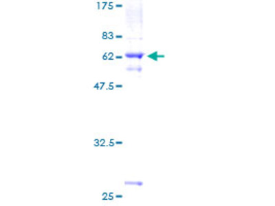 SLC25A19 Protein