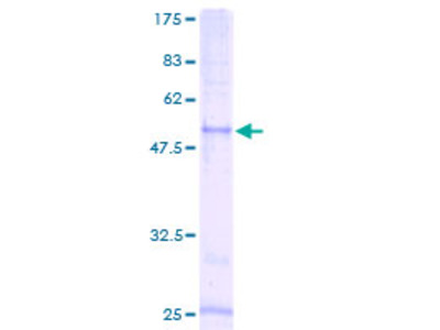 CCRL2 Protein