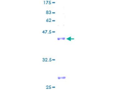 MRPL27 Protein