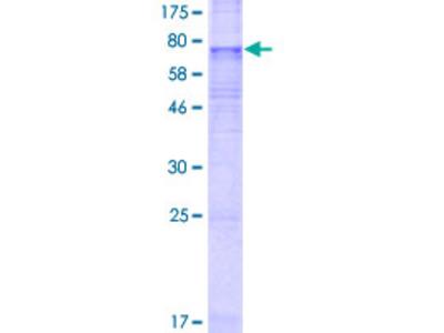 SLC35F3 Protein