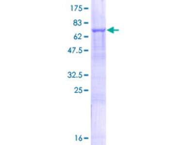 SLC25A23 Protein