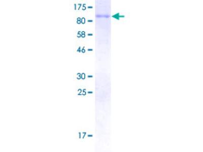 SCNN1B / ENaC Beta Protein