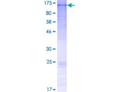 FCRL5 / CD307 Protein