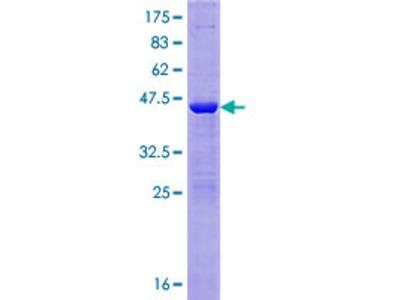 NAA50 / NAT13 / SAN Protein