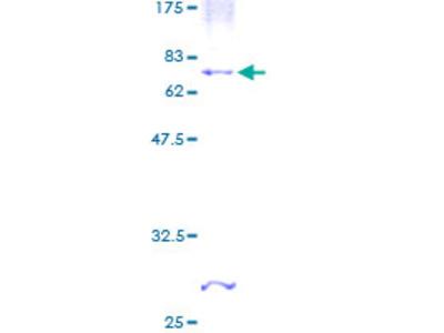CHST4 / GlcNAc6ST2 Protein