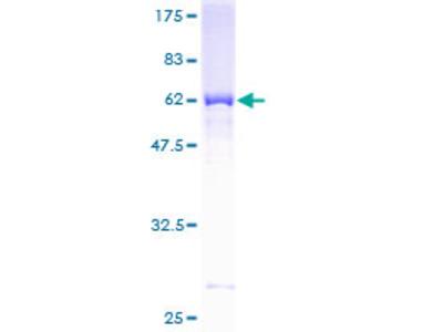 M-PST / STM Protein