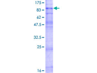 SLC22A2 Protein