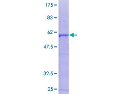 SDCBP / Syntenin Protein